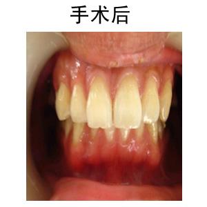 超声波洗牙前后对比照片-洗牙对牙齿有副作用吗