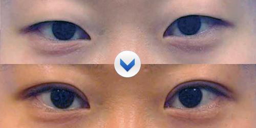 切开双眼皮前后对比图-单眼皮自然变双眼皮有什么方法