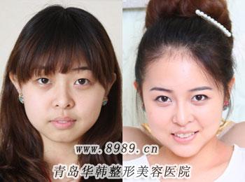 陈瑛超声波洗牙前后对比照片-洗牙后的效果怎么样