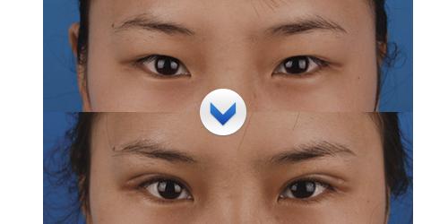 做了双眼皮效果图比较