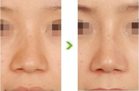 注射隆鼻效果前后对比图