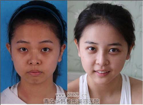 割双眼皮恢复过程图