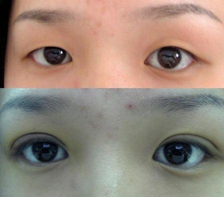 切开双眼皮前后对比图-青岛做切开双眼皮要多少钱