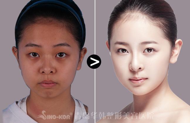 复合彩光嫩肤美白皮肤前后效果对比