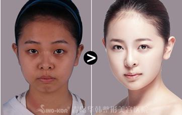 埋线双眼皮效果图-青岛埋线双眼皮怎么做