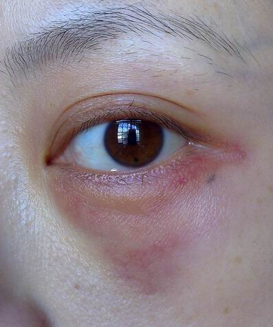 眼袋手术后失败图片