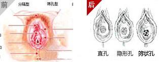 处女生膜高清大图处钕膜被捅图片15处钕膜被捅图片处