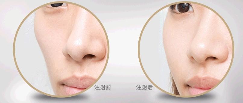 自体脂肪面部填充对比照片